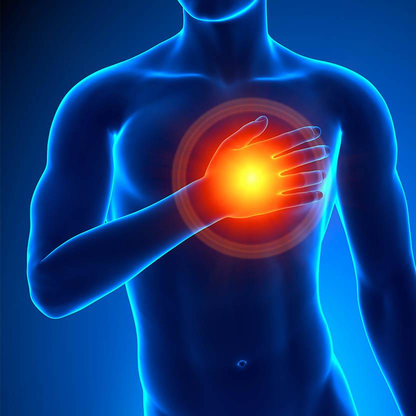 Sitnomas de una ataque al corazón (gráfico).